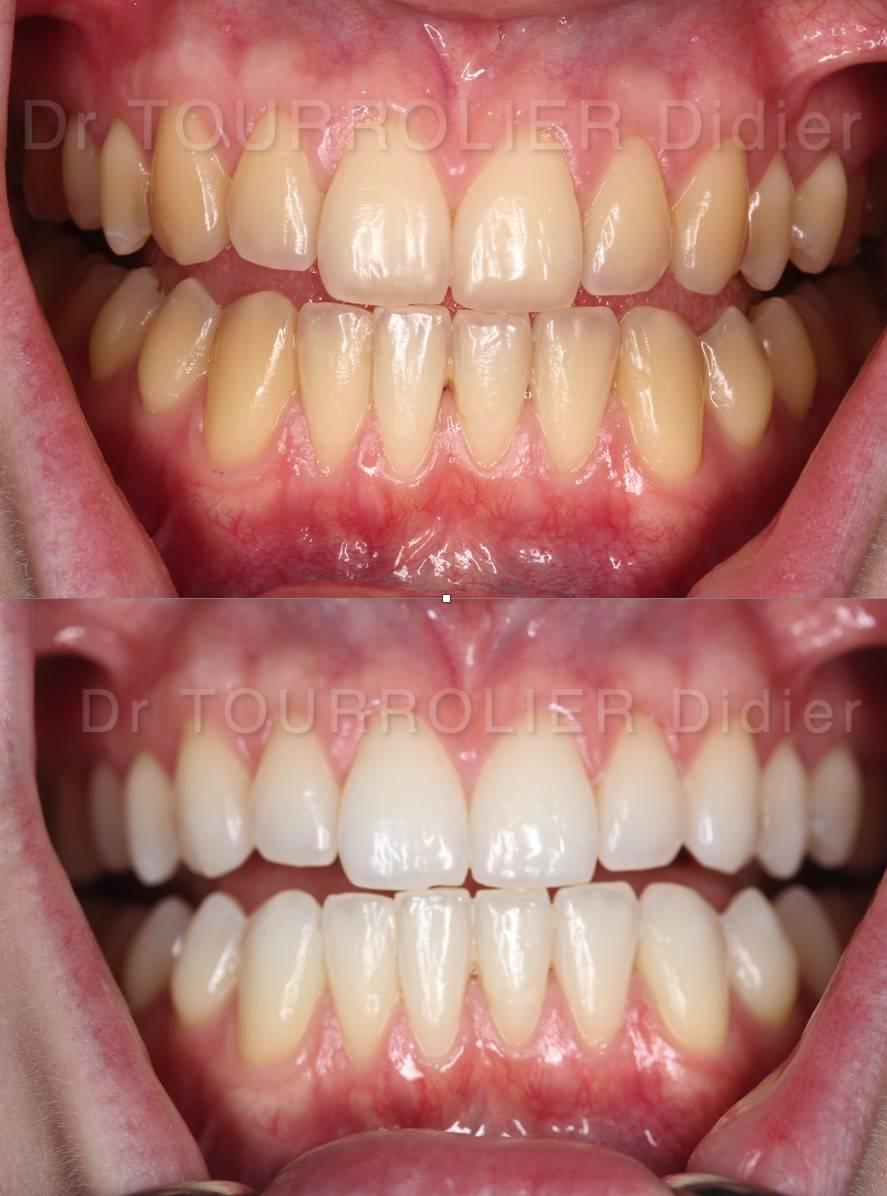 blanchiment dent prix