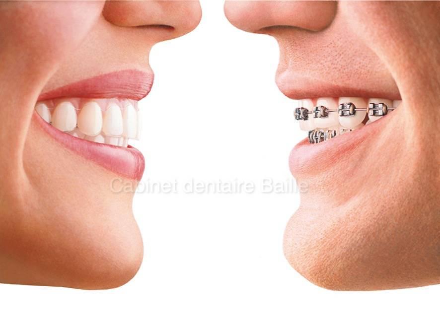 broche dentaire invisible