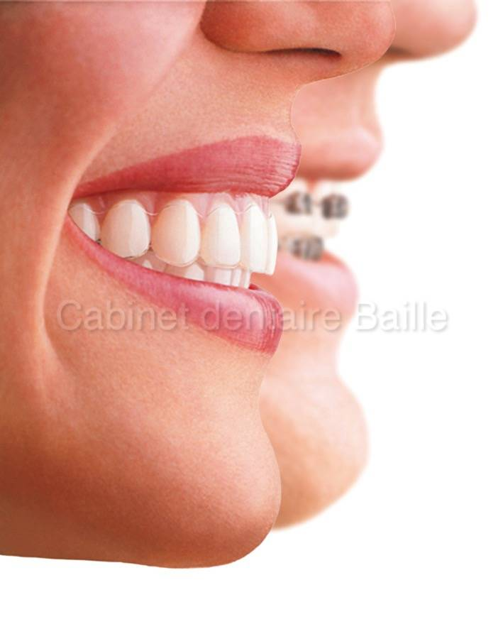 appareil dentaire invisalign prix