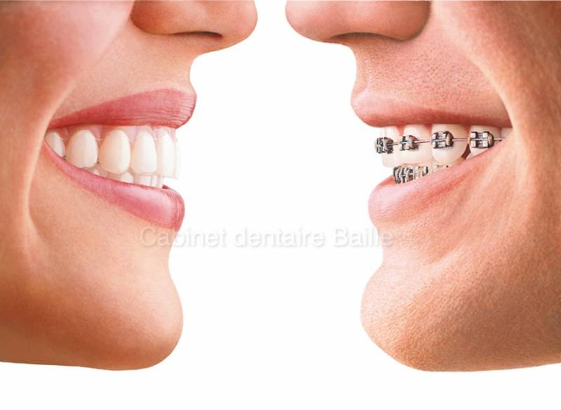 Orthodontie esthetique Marseille