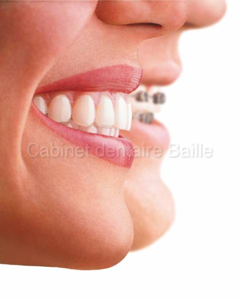 Gouttiere orthodontique invisible Invisalign® au cabinet du Docteur didier Tourrolier